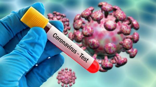 Azərbaycanda koronavirusa yoluxanların sayı azaldı