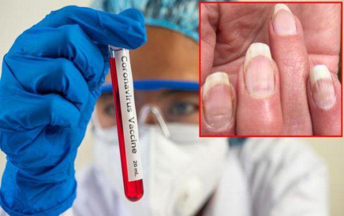 Dırnaqlarda yaranan bu iz koronavirusa yoluxduğumuza işarə edir -  YENİ ARAŞDIRMA