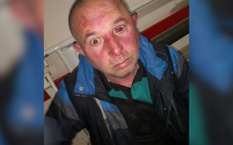 Kiyevdə bir qrup azərbaycanlıya soyuq silahla hücum edilib -  FOTO