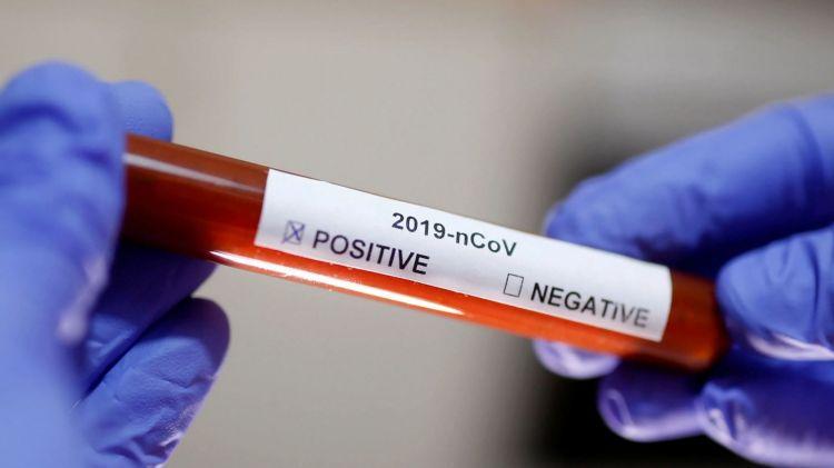 Azərbaycanda koronavirusa yoluxanlar  kəskin azaldı