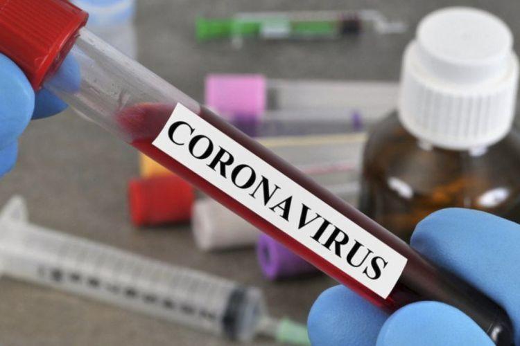 Azərbaycanda son sutkada koronavirusa yoluxanların  statistikası
