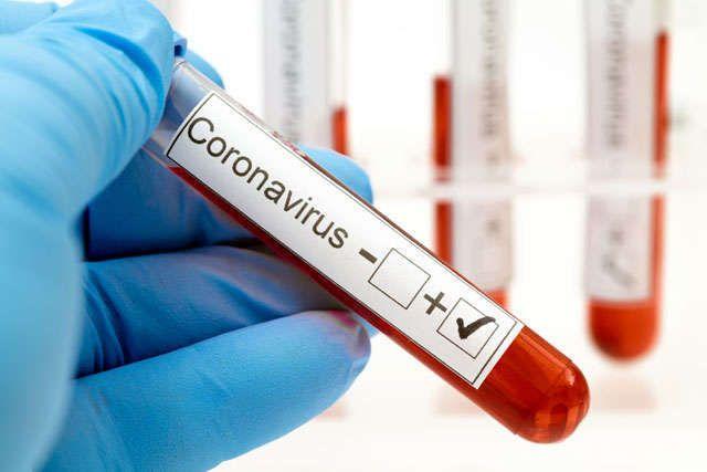 Azərbaycanda koronavirusa yeni yoluxma sayı açıqlandı