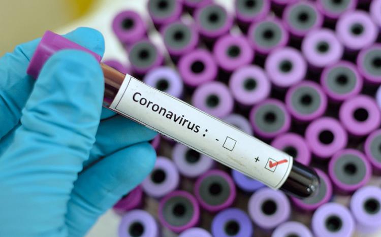 Azərbaycanda son sutkada koronavirusdan ölən olmayıb