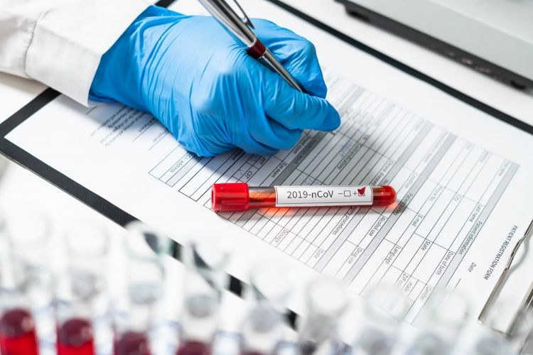 Azərbaycanda ötən sutka ərzində  2 nəfər koronavirusdan vəfat edib