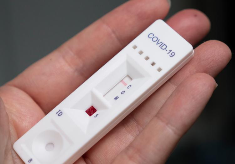 Koronavirus ştammlarını müəyyən etmək üçün sürətli testlər hazırlandı
