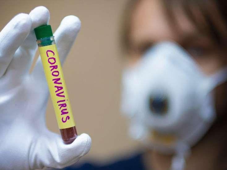 Koronavirusun sağaldıqdan sonra izi qalan daha bir fəsadı aşkarlanıb