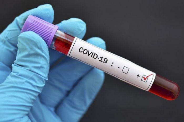 Azərbaycanda son sutkada 24 nəfər koronavirusdan ölüb