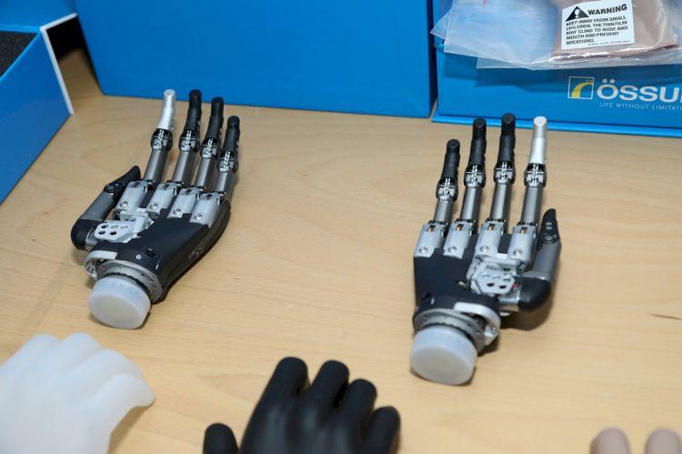 Qazilər üçün də son nəsil protezlər gətirildi -  FOTO