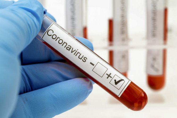 Ölkə üzrə COVID-19-a yoluxma statistikası açıqlanıb